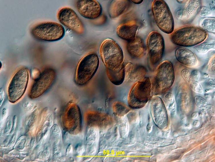 Черный рак яблони (конидии) - Botryosphaeria obtusa