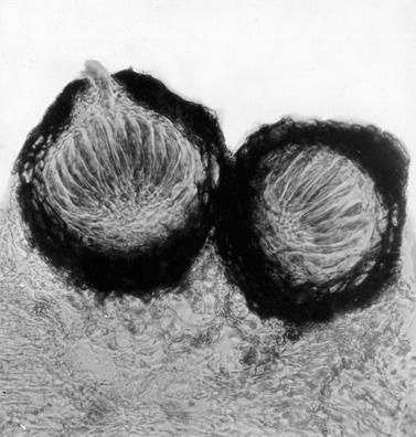 Cумчатая стадия белой пятнистости земляники - Mycosphaerella fragarie