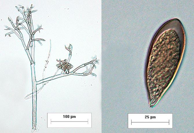 Споры пероноспороз лука – Peronospora destructor